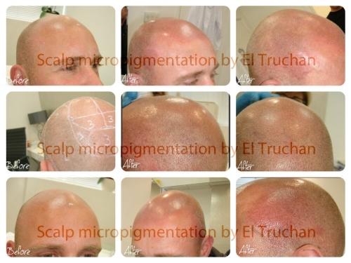 Hair Simulation Scalp Micropigmentation by El Truchan @ Perfect Definition