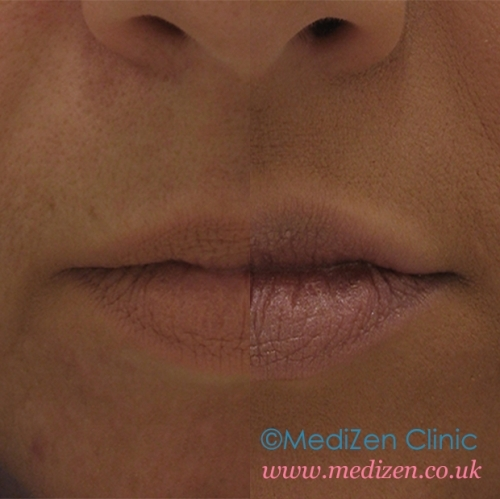 Lips Before After Fillers Brimingham
