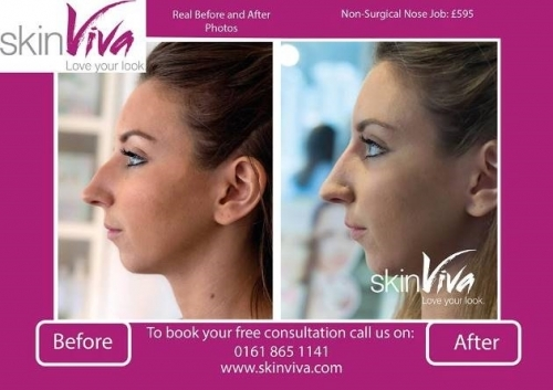 Non Surgical Nose Job Results