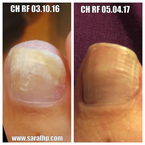 CH Rf 03 10 16 - 05 04 17