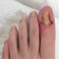 ingrown toe nails in bexley