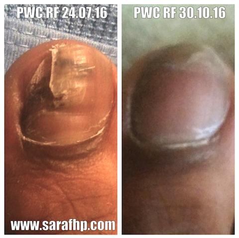 PWC Rf 24 07 16 - 30 10 16 comparison photo (3 months)