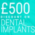 Dental Implants London | Implants Cost From £1995 | Private dentist London