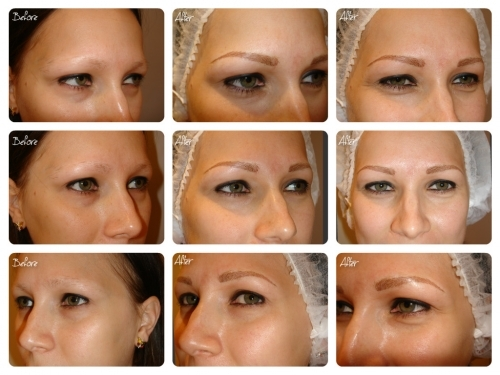 Permanent Make Up for Alopecia & Trichotillomania - 3D Hairstroke Eyebrows by El Truchan @ Perfect Definition