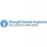 Shergill Dental Implants - Birmingham