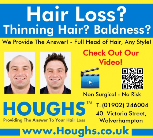 Hair Replacement Wolverhampton