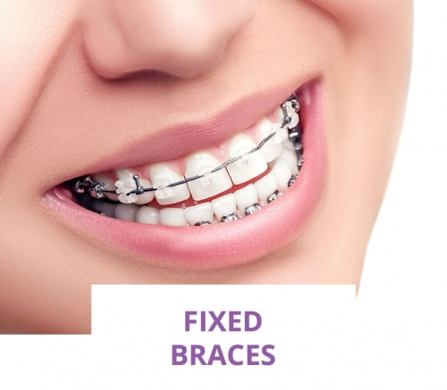 Traditional fixed braces (Metal)